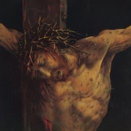 北方文藝復興的著名傑作,艾森漢姆祭壇畫(Isenheim Altarpiece, 1506-1515)中的耶穌像。畫家繪畫耶穌時,把當時農民常見的嚴重皮膚病畫在耶穌身上。