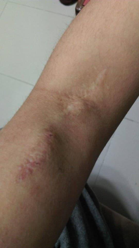 醫生以左上臂的血管為動静脈廔管,故在關節動刀並留下疤痕。