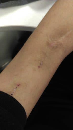 每次血液透析的打針位置,近關節針位為動脈位置,近衫袖針位是靜脈位