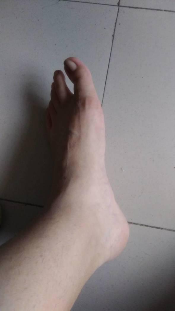 腳部水腫,肉眼難以看見腳踝
